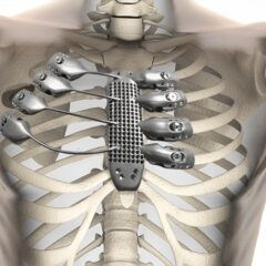 Cancer Patient Receives World's First 3D Printed Rib Cage